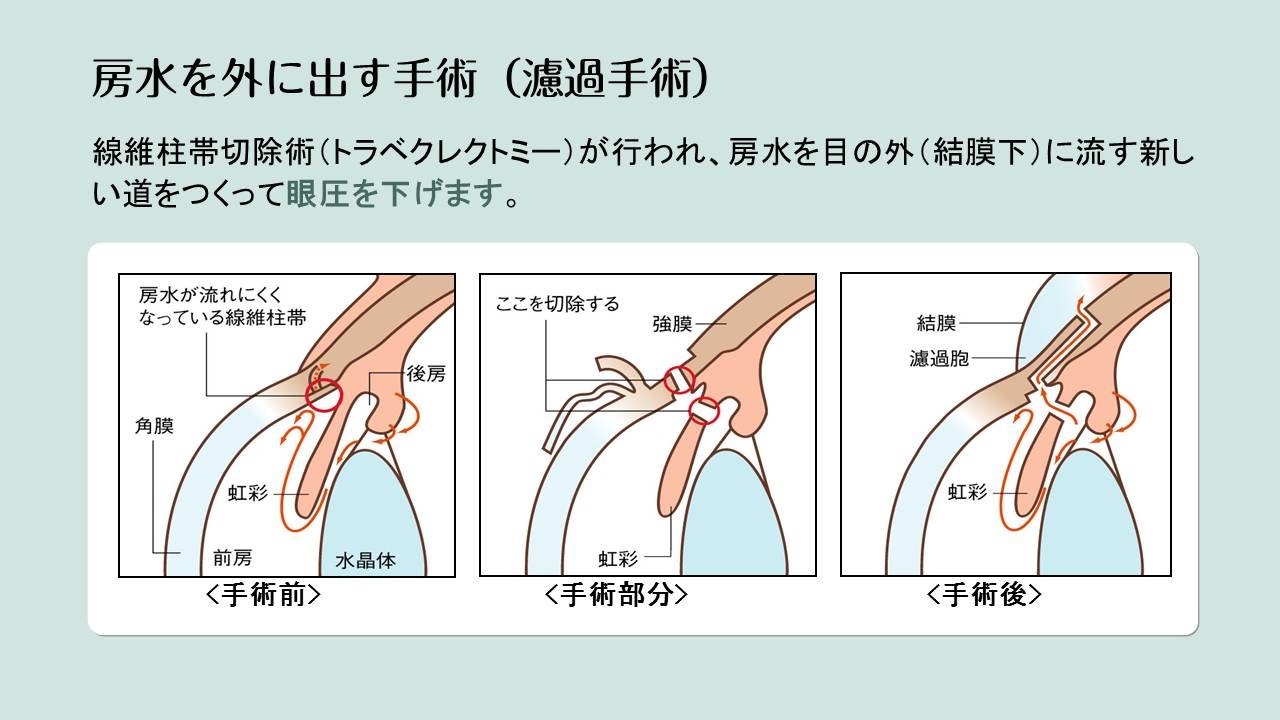 濾過手術(線維柱帯切開術)