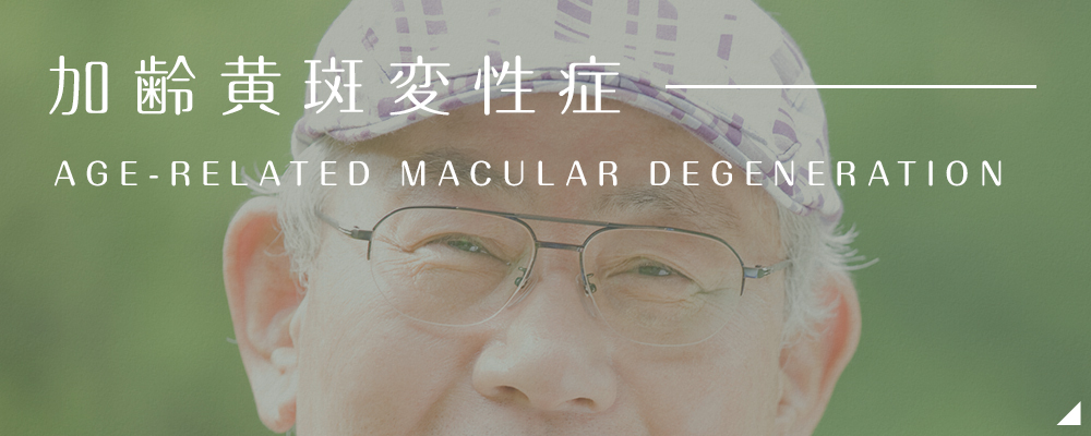 加齢黄斑変性症 AGE-RELATED MACULAR DEGENERATION